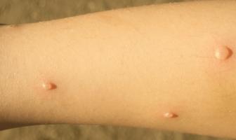 Síntomas de la varicela en niños