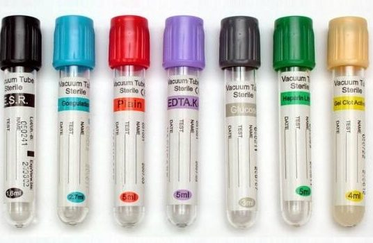 Tubos de recoleccion de sangre colores