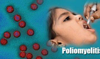 Síntomas de poliomielitis en niños