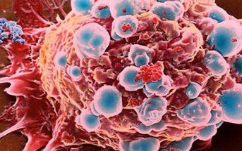 Información sobre el tumor
