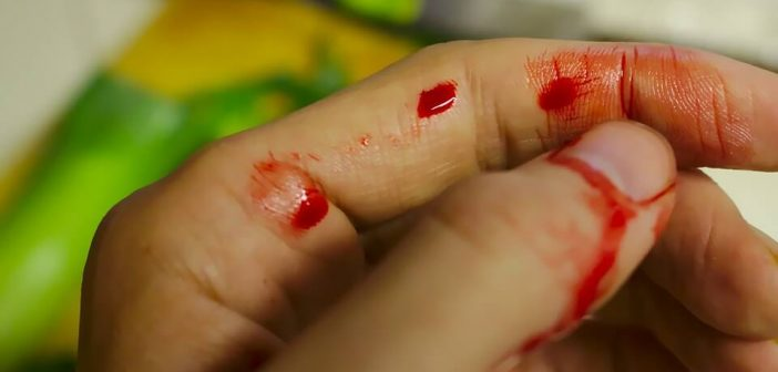 lesiones más comunes en la cocina