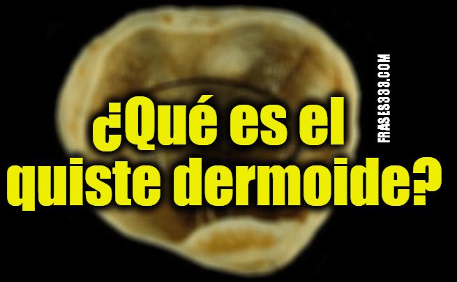 ¿Qué son los quistes dermoides?