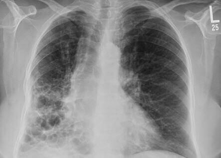 ¿Cuáles son las causas y los síntomas de la bronquiectasia?
