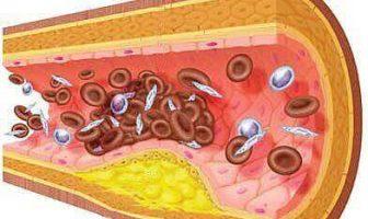 ¿Cuáles son las causas y los síntomas de la arteriosclerosis?