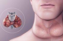 El Bocio Causa Síntomas y Tipos - ¿Cuáles son los tipos de enfermedad del bocio?