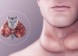 El Bocio Causa Síntomas y Tipos – ¿Cuáles son los tipos de enfermedad del bocio?