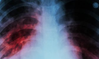 Causas y síntomas de la tuberculosis: complicaciones de la tuberculosis