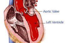 ¿Qué es la Aorta? Funciones de la Aorta y Enfermedades de la Aorta