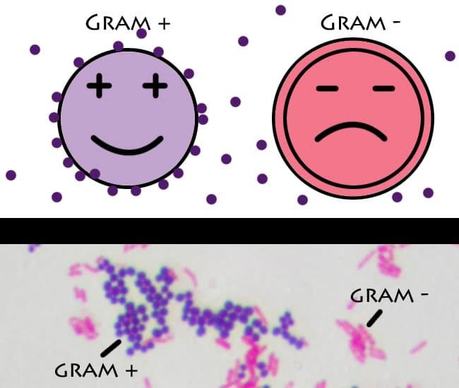 Diferencia Entre Bacterias Grampositivas y Gramnegativas