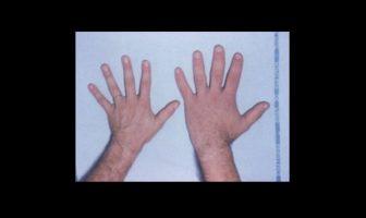¿Qué es la acromegalia? - ¿Cuales son los sintomas? Como es tratado?