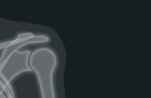 ¿Cuál es la anatomía del hombro?