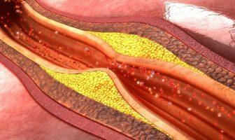 ¿Qué es la aterosclerosis? - Síntomas y causas de la aterosclerosis