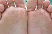 Diagnóstico y tratamiento del pie de atleta